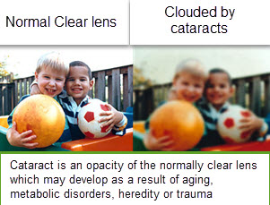Cataract photo from Optique, opticians in Battersea, London