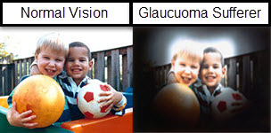 Glaucoma photo from Optique, opticians in Battersea in London