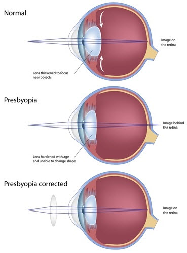Image of Presbyopia from Optique, opticians in Battersea, London
