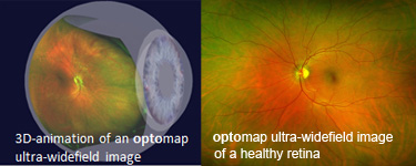 Optomap image of the eye from Optique, opticians in Battersea, London